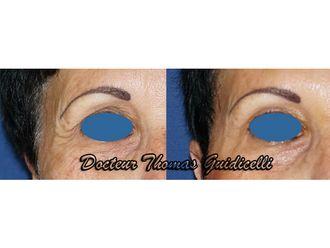 Botox - 572938