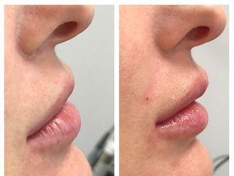 Augmentation des lèvres-631837