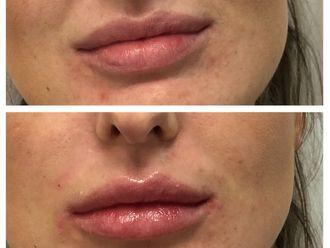 Augmentation des lèvres-631838