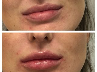 Avant après Augmentation des lèvres