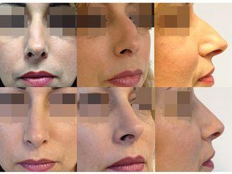 Chirurgie Esthétique-544949