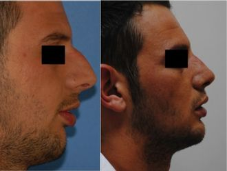 Chirurgie maxillo-faciale - 520327
