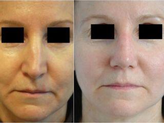 Avant après  Rhino-septoplastie correction de valve nasale