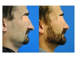 Chirurgie Esthétique-562817