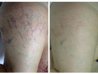Laser dermatologique-544104