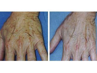Laser dermatologique-544106