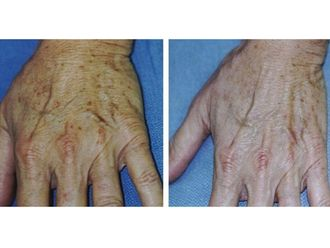 Dermatologie-544106