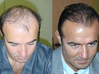 Greffe de cheveux-468122