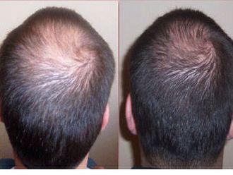 Greffe de cheveux-468123