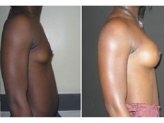 Augmentation mammaire-646878