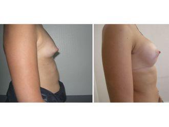 Augmentation mammaire - 646887