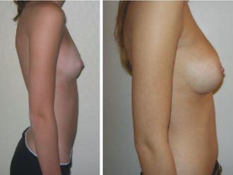 Augmentation mammaire-646888