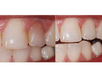 Blanchiment des dents-547088