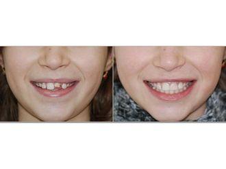 Chirurgie maxillo-faciale-547090