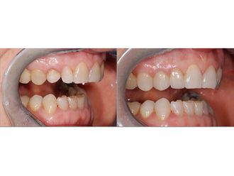 Chirurgie maxillo-faciale - 547091