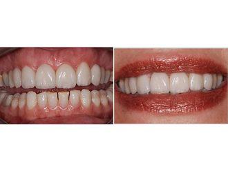 Blanchiment des dents-547092