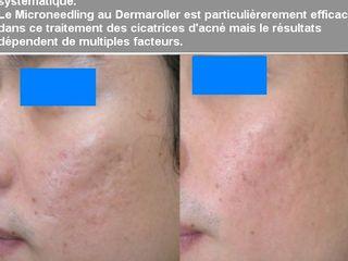 Avant après  Cicatrices d'acné