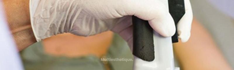 Laser pigmentaire : Taches brunes - Détatouage - Xanthelasma -Soft peel