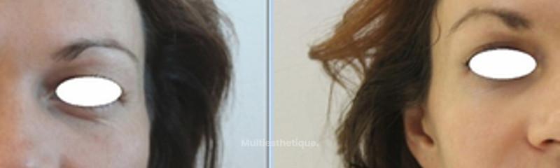 Cerne creux (avant / après)
