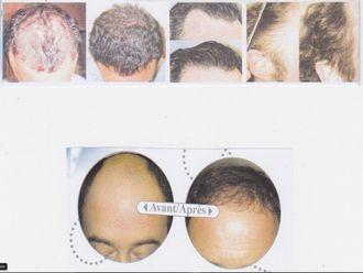 Greffe de cheveux-561068