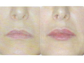 Augmentation des lèvres-563098