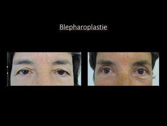 Blépharoplastie - 586996