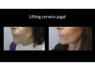 Avant après lifting cervico-jugal