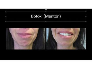 Avant après botox menton