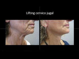 Avant après lifting cervico jugal