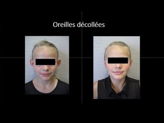 Otoplastie-593969