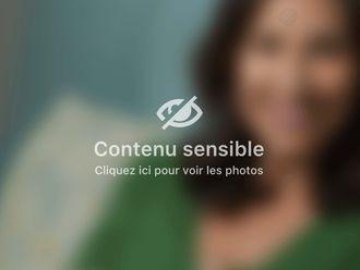 Augmentation mammaire - 660847