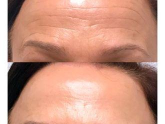 Botox-643907