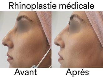 Rhinoplastie médicale-741004