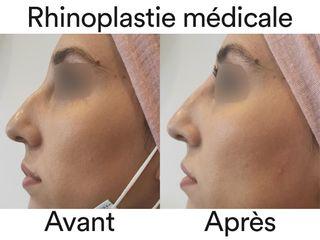 Rhinoplastie médicale - Dr Lionel Ferrier
