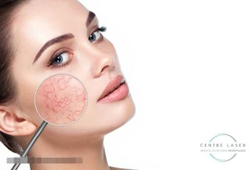 Lesions vasculaires