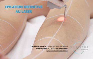 Centre Laser Medical Montpellier - salle traitement