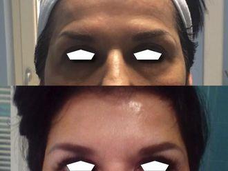 Botox-799405