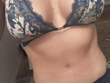 5 mois après abdomiloplastie, tout est toujours parfait