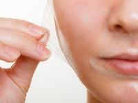 acne-peel system
