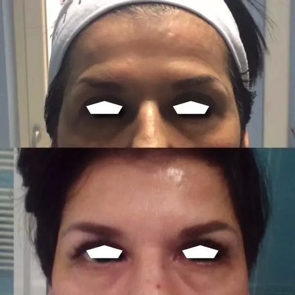 avant / après Botox