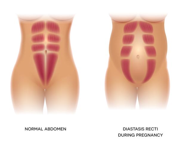 Séparation des muscles du grand droit