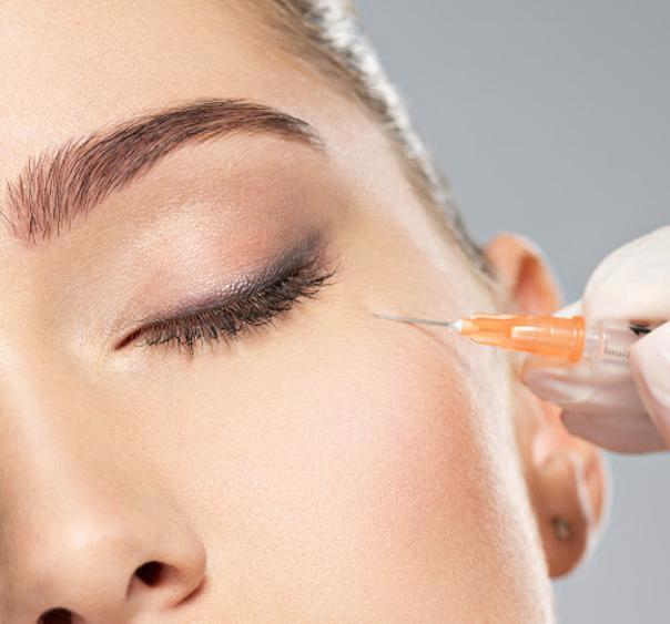 micro-injections intradermiques de CO2 stériles