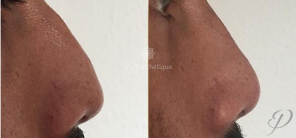 rhinoplastie médicale avant après