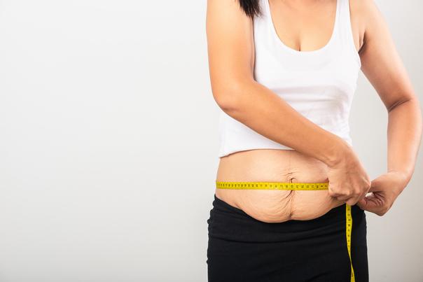 Perte de poids et excès de peau