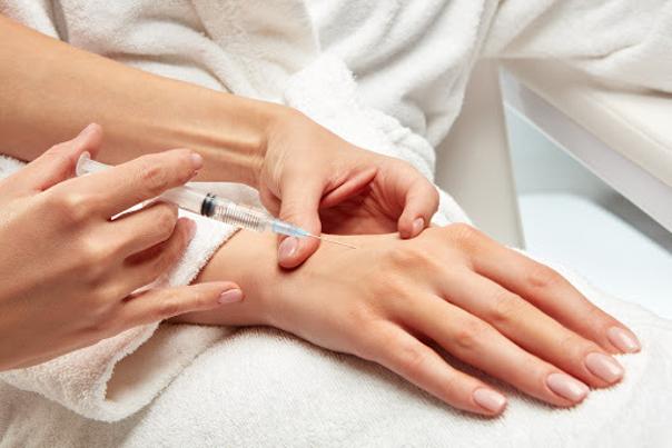 injections de comblements dans le dos de la main