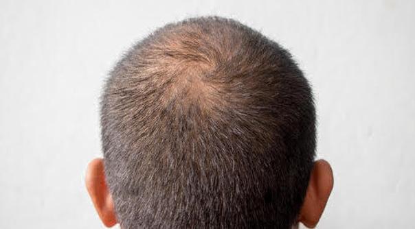 Calvitie à l'arrière du crâne