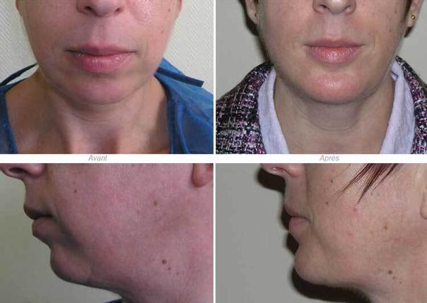 avant / après mentoplastie