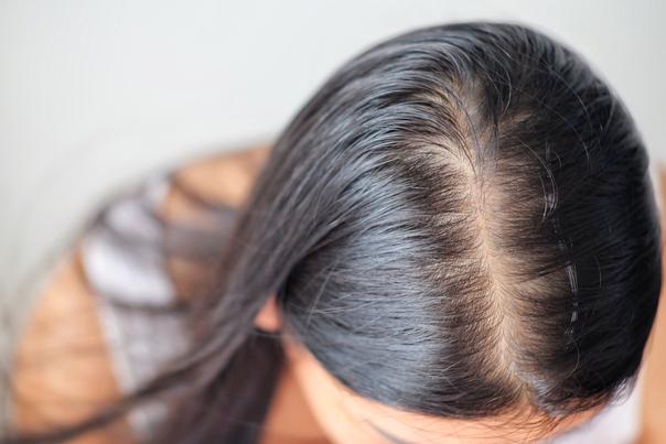 Quelles sont les causes de la chute de cheveux ?