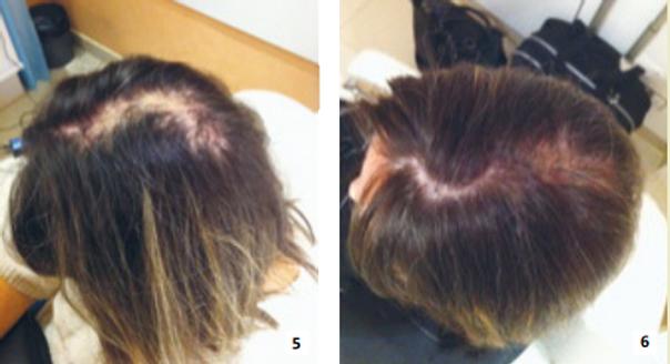 dermopigmentation avant apres