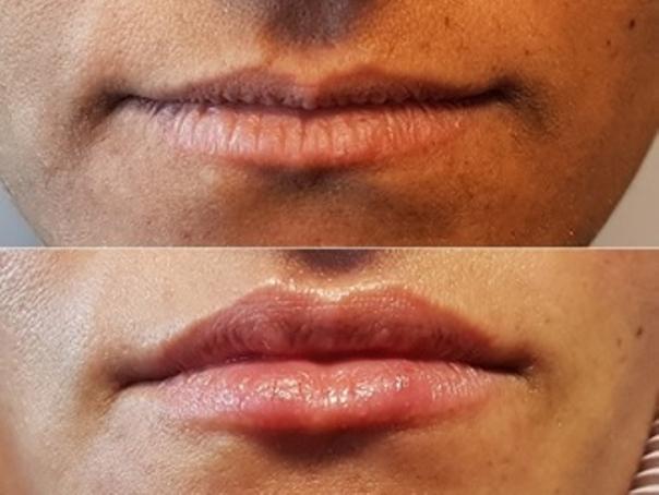 Avant / après augmentation des lèvres